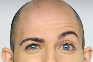 Лазерная эпиляция бровей для мужчин