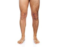 Лазерная эпиляция ног для мужчин
