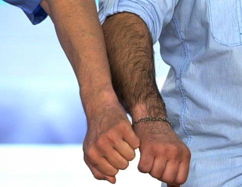 Лазерная эпиляция руки до локтя для мужчин
