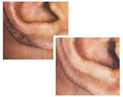 Лазерная эпиляция ушей для мужчин